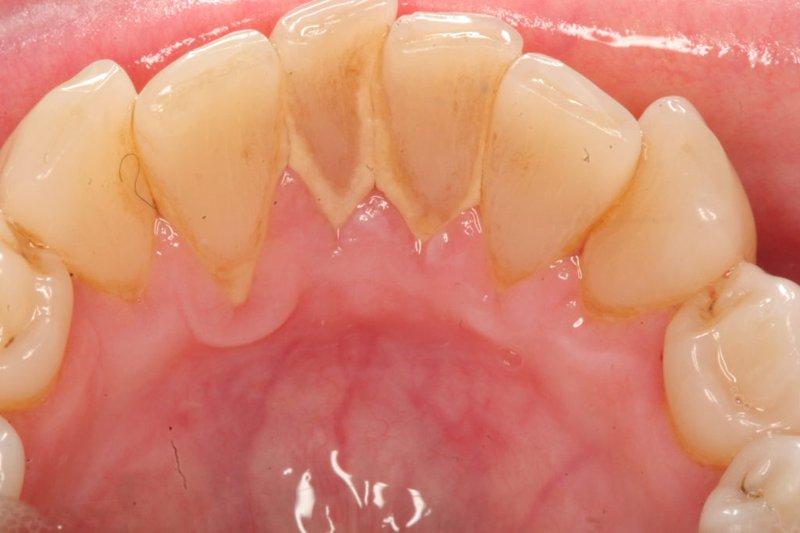 Nên lấy cao răng bao lâu một lần? | Vinmec