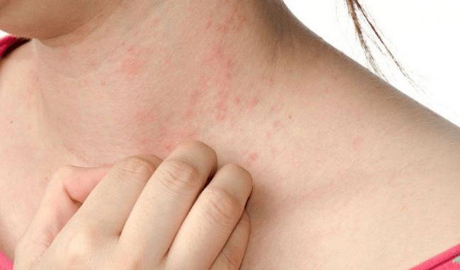 Bệnh sởi ở người lớn: triệu chứng và cách điều trị hiệu quả - Hapacol