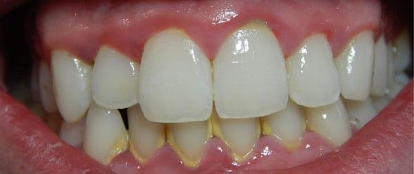 Lấy cao răng có thực sự cần thiết? - Nha Khoa Gia Đình - Địa chỉ ...