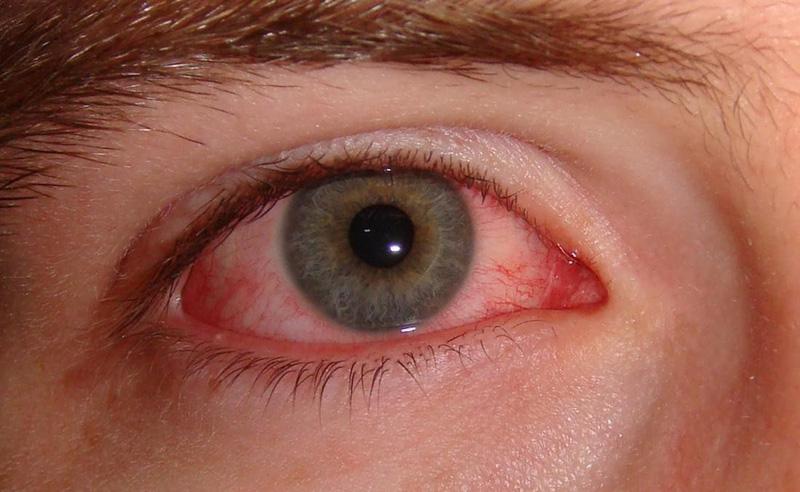 Cách phòng ngừa và điều trị bệnh đau mắt đỏ | VTV.VN