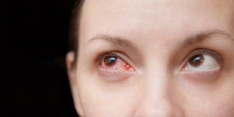 Đau mắt đỏ lây qua đường nào và cách phòng tránh - Bệnh viện mắt ...