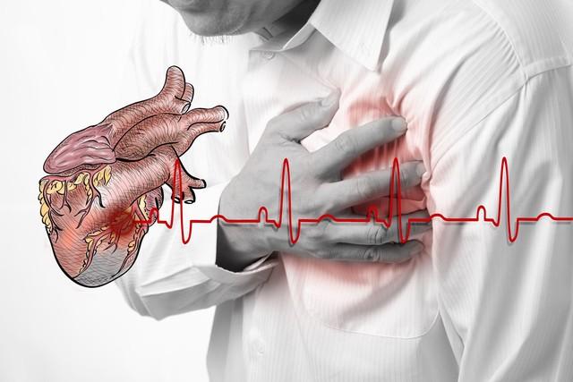 Hỏi đáp] Bệnh tim mạch có biểu hiện gì?