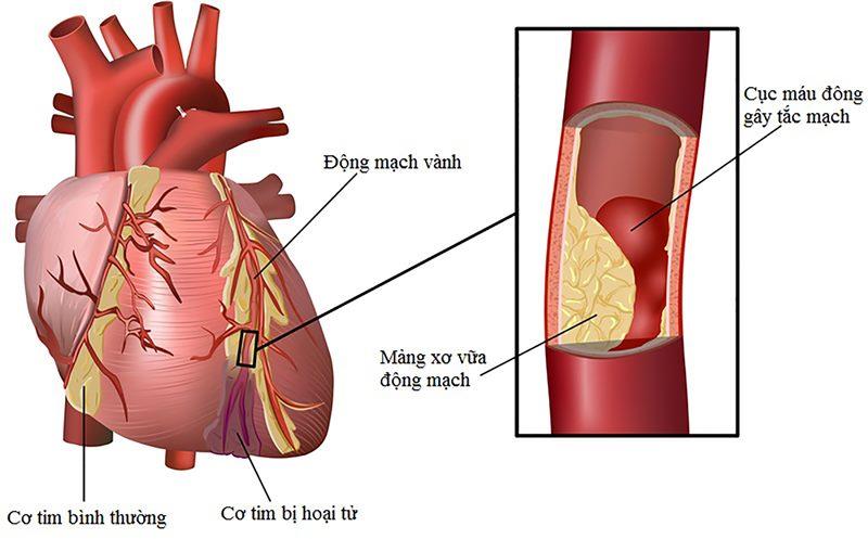 Nguy cơ tử vong cao vì biến chứng tim mạch của bệnh tiểu đường