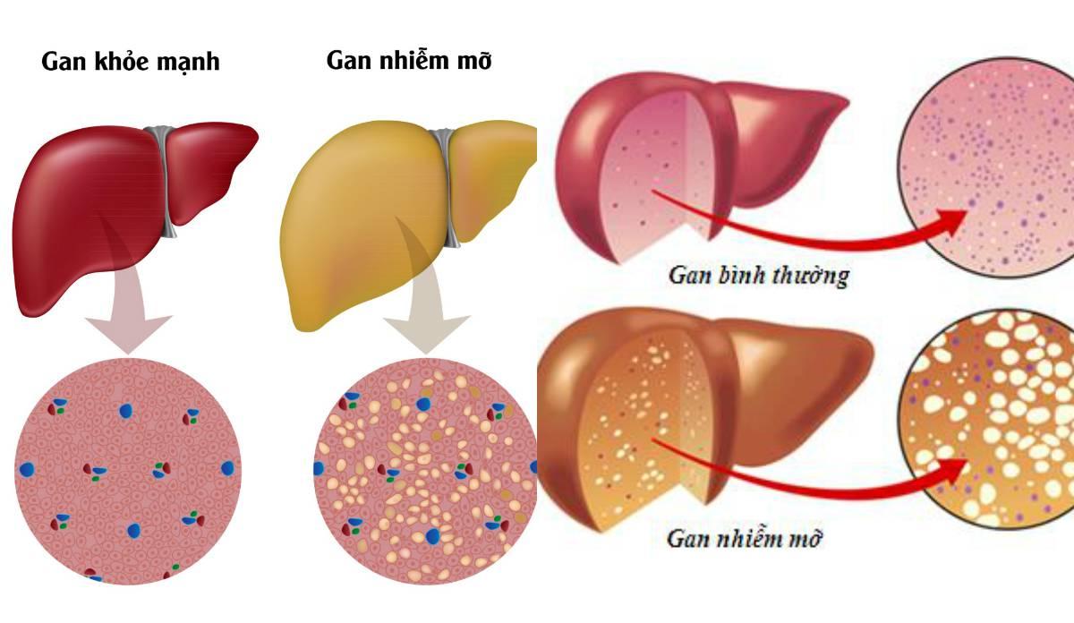 Tổng quan về bệnh gan nhiễm mỡ