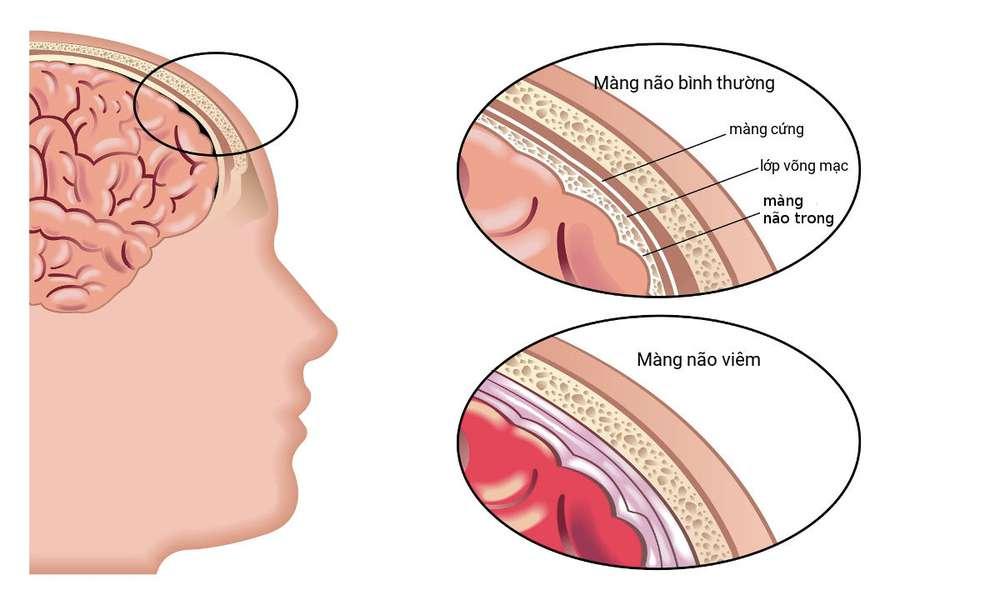 Viêm màng não là gì?