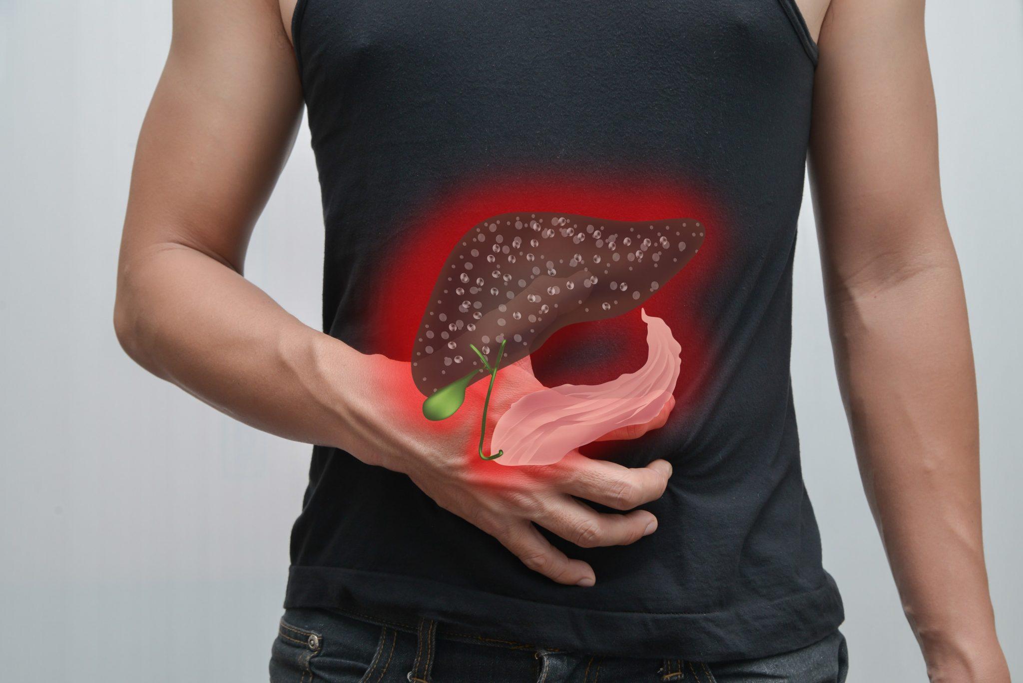 Cách điều trị bệnh gan nhiễm mỡ độ 1 hiệu quả nhất - Nhà thuốc Long Châu