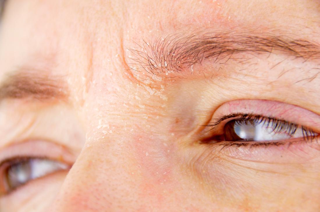 Bệnh viêm da tiết bã là gì?