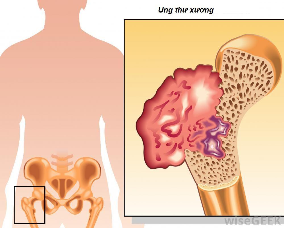 Ung thư xương