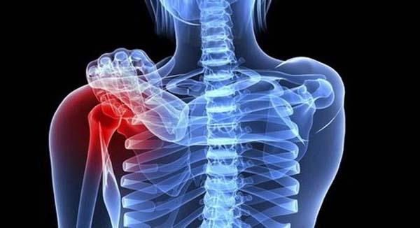 Ung thư xương là bệnh lý nguy hiểm, ảnh hưởng lớn tới sức khỏe và tính mạng