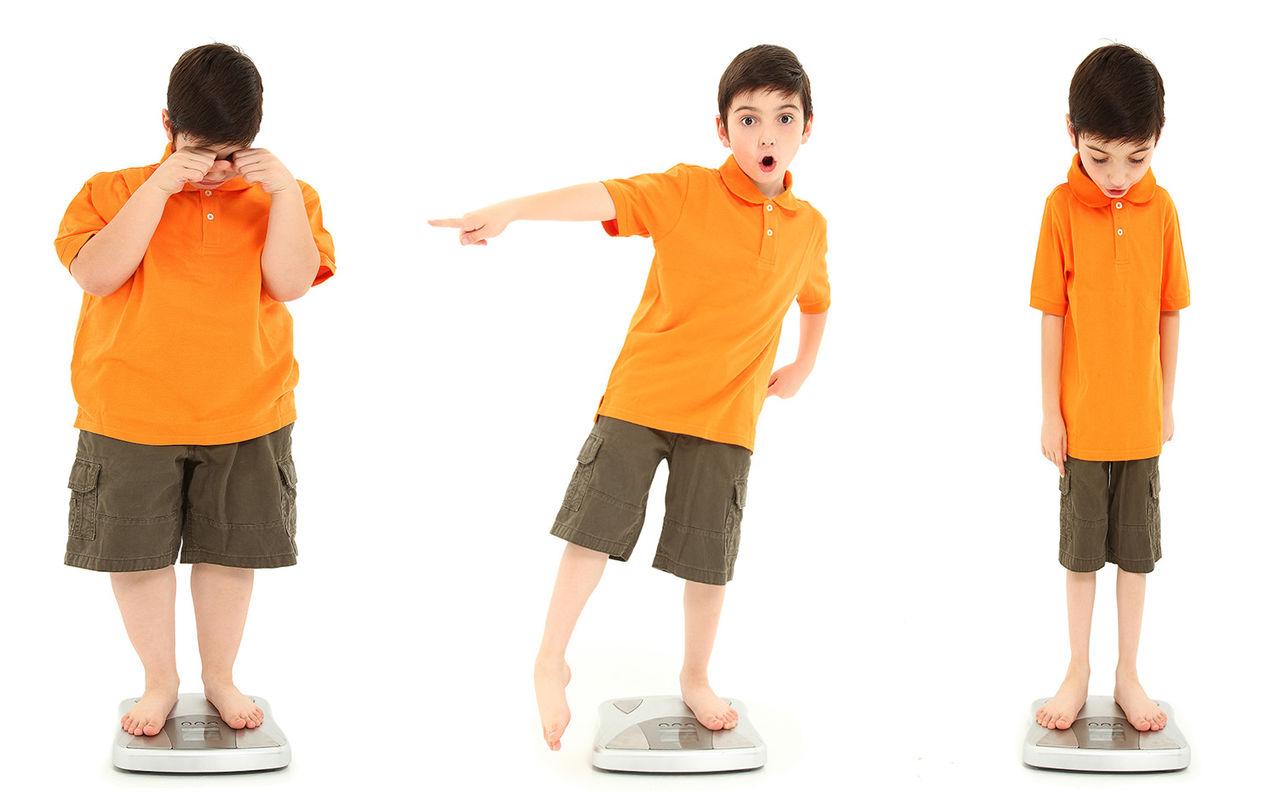 Bệnh còi xương ở trẻ là gì